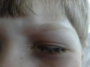 Bindehautentzündung bei einem älteren Kind